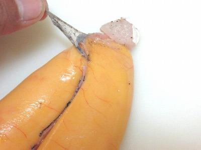 不要な膜除去